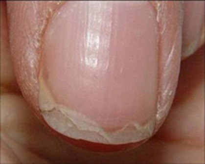 Brittle Nails Are Most Commonly Ociated With Aging Or If You Exposed To A Lot Of Chemicals Like Laundry Detergent They Can Also Be Sign Fungal