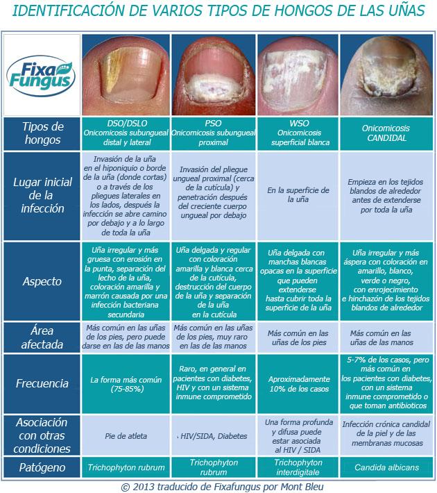 El propóleos la tintura de alcohol la aplicación al tratamiento del hongo de uña
